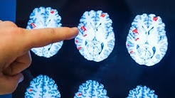 Researchers say there's evidence that consciousness continues after clinical death