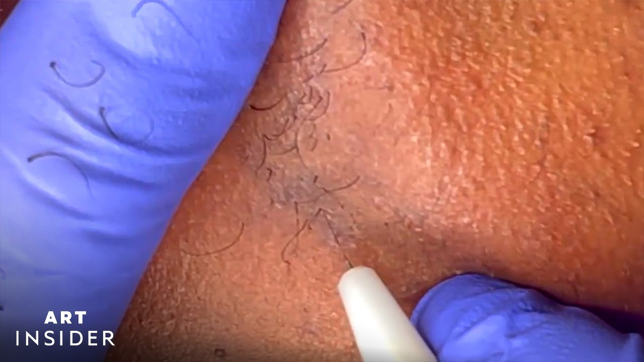 Electrolysis Permanently Removes Body Hair