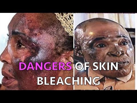 The Skin Bleaching Epidemic In Africa | Its Origin And Irreversible Damages.