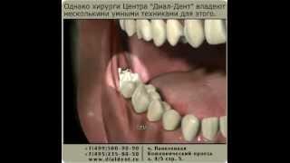 Удаление зуба мудрости(Операция удаления зуба мудрости в клинике