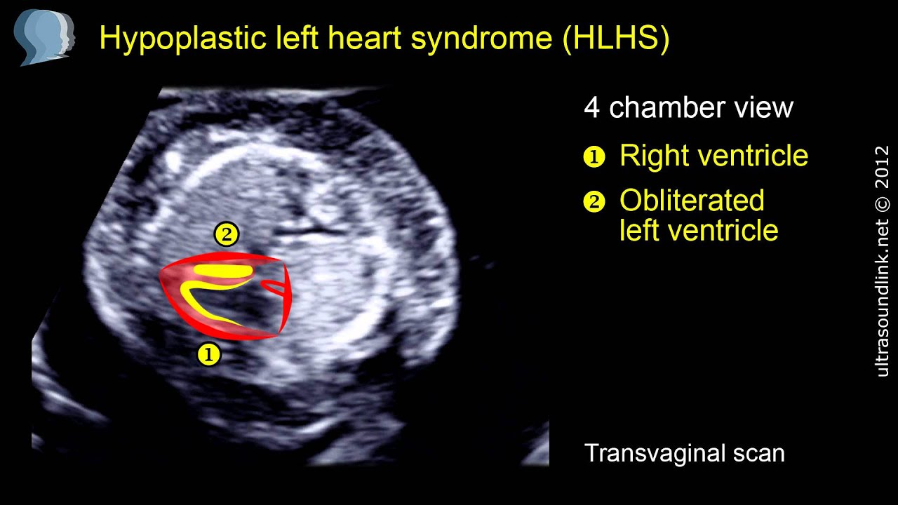 Hypoplastic left heart syndrome (HLHS) at 12 weeks of pregnancy ...