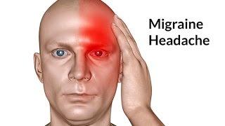 Mẹo Vặt Cuộc Sống - Mẹo trị đau nửa đầu