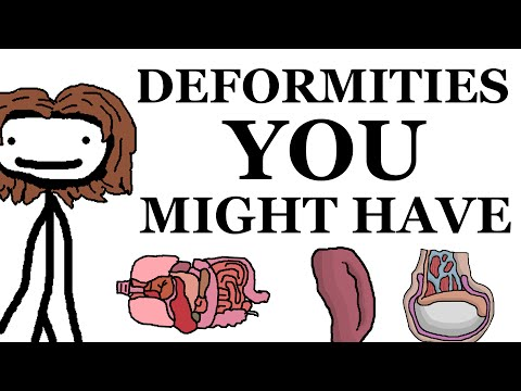 Deformities That You Might Have