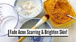 hqdefault - Acne Scars Home Remedies For Oily Skin