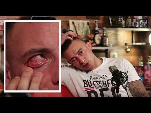 Dušan Džakić prvi put javno pokazao silikon u oku!