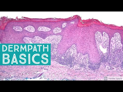 Basic Dermpath Cases 2 - Explained by a Dermatopathologist