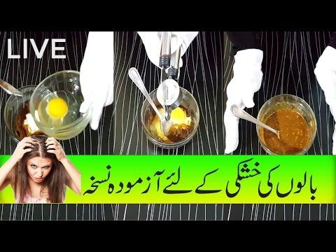 Hair Dandruff Treatment, Balon Ki Khushki Ka Ilaj With Home Remedies In Urdu Hindi