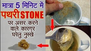 पथरी को जड़ से ख़त्म करने के सबसे कामियाब उपाय  Remove kidney Stone Forever Naturally With Home Remedy
