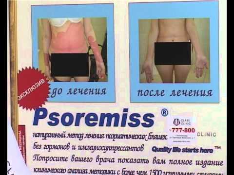 Дерматология   лечение псориаза без гормонов