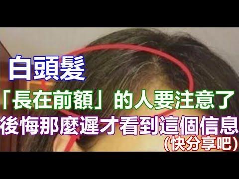白頭髮「長在前額」的人要多注意了!後悔現在才看到這篇(快分享吧)