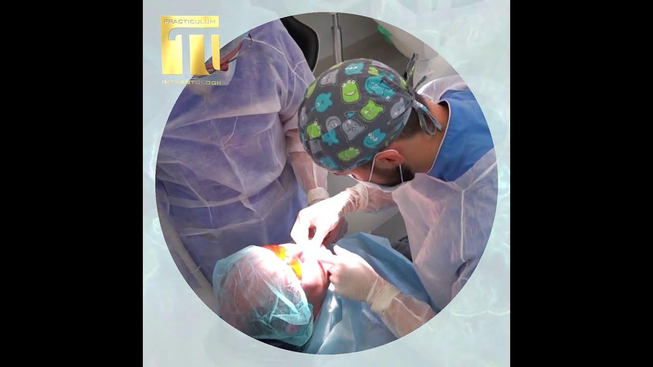 Practiculum Implantologii Sezon X   grupa A sesja 4 zabieg 1