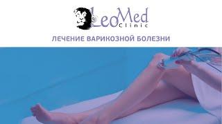Лечение варикозной болезни(http://www.leomed.com.ua/ тел. (044) 238-89-93 Варикозная болезнь — одно из наиболее распространенных сосудистых заболевани..., 2015-02-13T17:40:39.000Z)