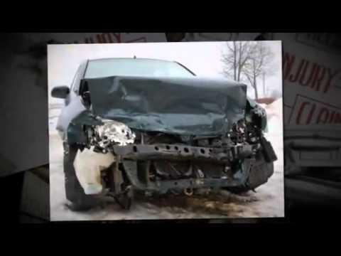 Car Accident Lawyer in San Jose |  California
