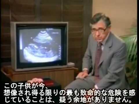 悪質!!「日本の奇形児出産頻度が増えている」は …