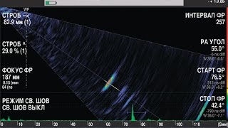 Дефектоскоп DIO 1000 PA. Общее представление, обзор.(Обзор дефектоскопа с фазированными решетками STARMANS DIO 1000 PA. Общее представление функций, достоинства и преим..., 2015-01-22T11:28:33.000Z)