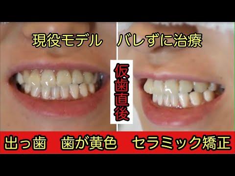 正中のズレのため奥歯の咬み合わせが悪く、歯ぎしり、食いしばりや顎自体のズレに悩むモデルさん