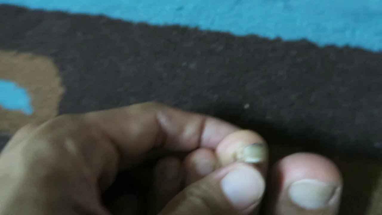 My toe nail is coming off - YouTube