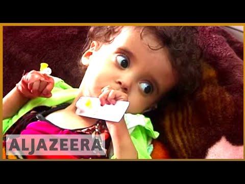 🇾🇪 Yemen's cancer crisis amid war   Al Jazeera English