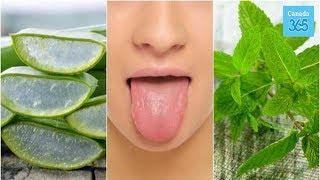 6 Natural Canker Sore Treatments On Your Tongue - Canada 365