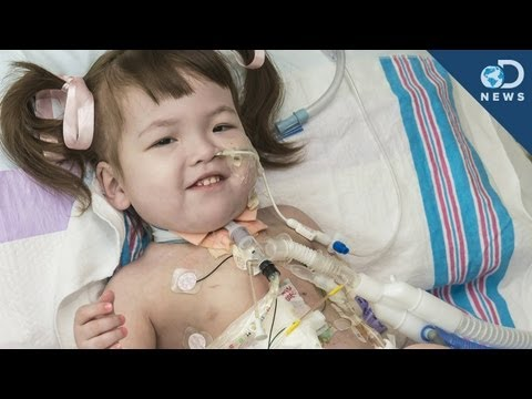 Stem Cell Tracheal Transplant Saves Girl's Life