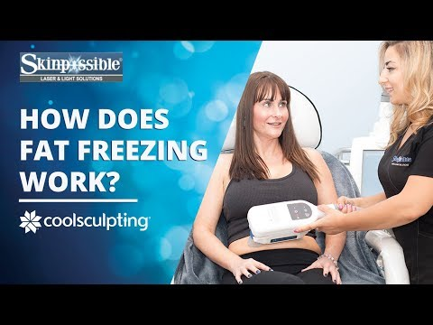 How does CoolSculpting work?- Calgary