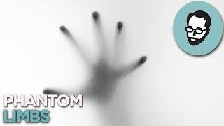 Phantom Limbs: When You Feel A Hand That Isn