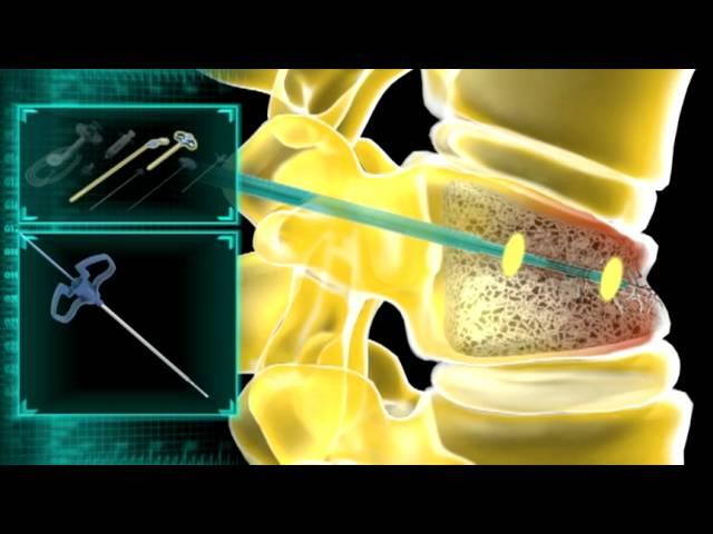 iVAS Procedure Animation