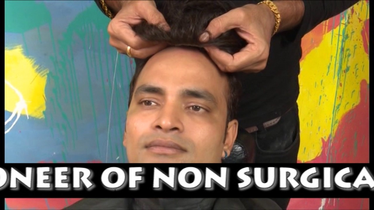 Non surgical hair transplant hair weaving hair fall treatment non surgical hair transplant hair weaving hair fall treatment kolkata india pmusecretfo Gallery