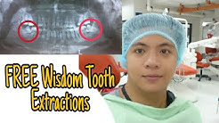 FREE Impacted Wisdom Teeth Removal, Extraction & Pain Reliever Tips
