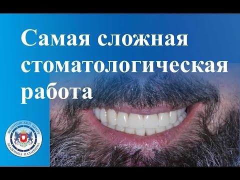 Самая сложная стоматологическая работа