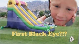 First Black eye from Giant Bouncy slide?! 😲