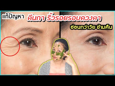 สูตรลับ แก้รอยตีนกา ริ้วรอยรอบดวงตาเหี่ยว ให้อ่อนกว่าวัย แค่ข้ามคืน l สรรหามาทำ