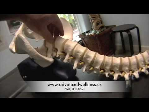 Reversing Spondylolisthesis using Chiropractic care, blocking and wobble chair therapy.