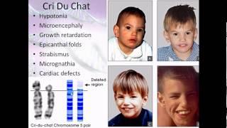 Pathophysiology 16  Chromosomal abnormalities