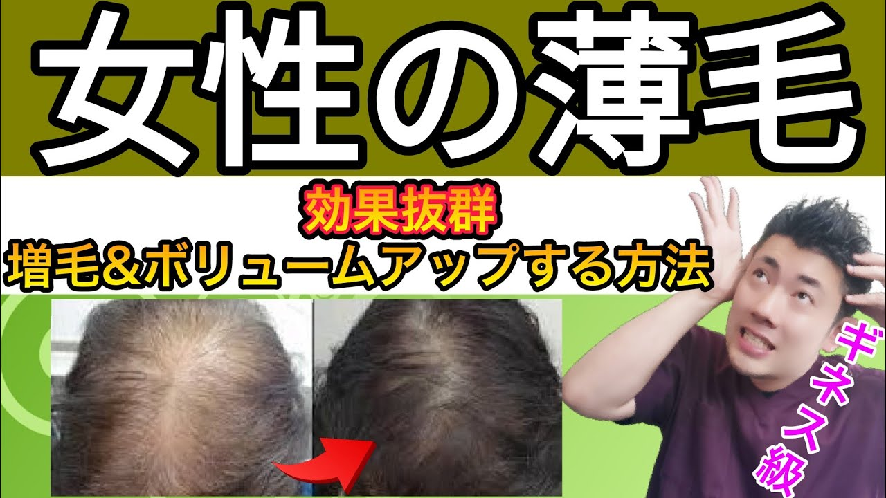 【女性の薄毛は治る】増毛とボリュームアップをして薄毛を治す!【育毛方法】