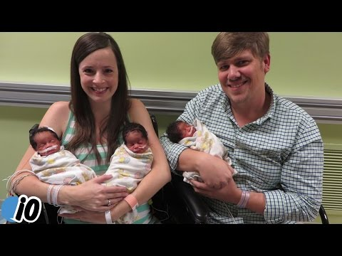 White Parents Give Birth To Black Triplets