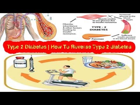 type-2-diabetes- -how-to-reverse-type-2-diabetes