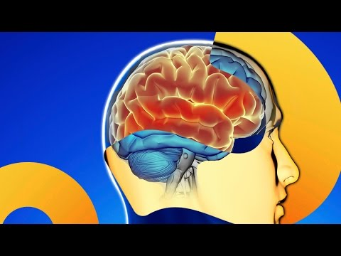 Scanners and Brain Computer Interfaces | HowStuffWorks NOW