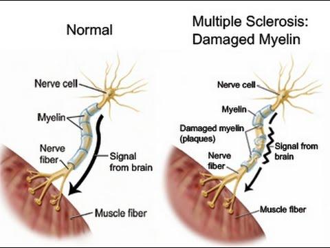 Resultado de imagen de esclerosis multiple
