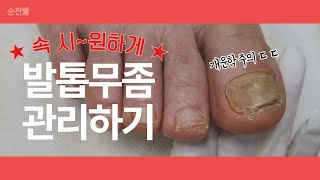 발톱 무좀! 곰팡이균 물럿거라 ( 깨끗하게 치료되는 발…