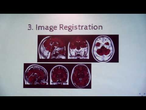 Image from Data Analysis in MRI and PET/MRI Neuroimaging