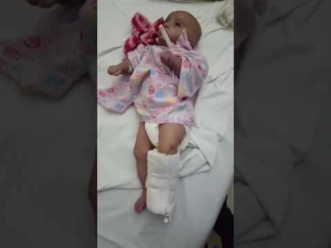 Case of afebrile Gtcs convulsion in a 4month old baby. #medical #seizure