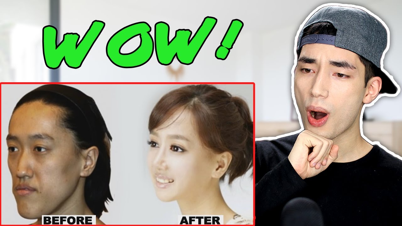 korean plastic surgery before and after photos reaction - youtube