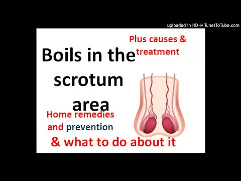 boils-on-scrotum,-causes,-treatment,-prevention-and-home-remedies