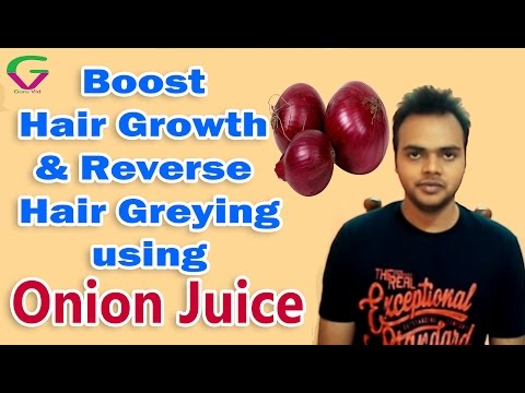 Onion Juice - The Best Home Remedy For Hair Loss Problems | Hindi