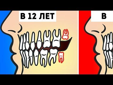 Как понять что нужно удалять зуб мудрости