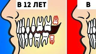 Действительно ли Нужно Удалять Зубы Мудрости?