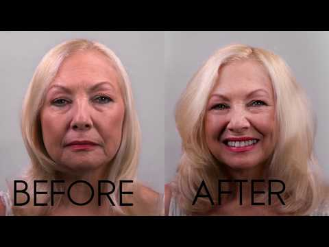 Hair Stranding-Best Non-Surgical Hair Addition Treatment, New Jersey. Free Trial-InvisaBlend
