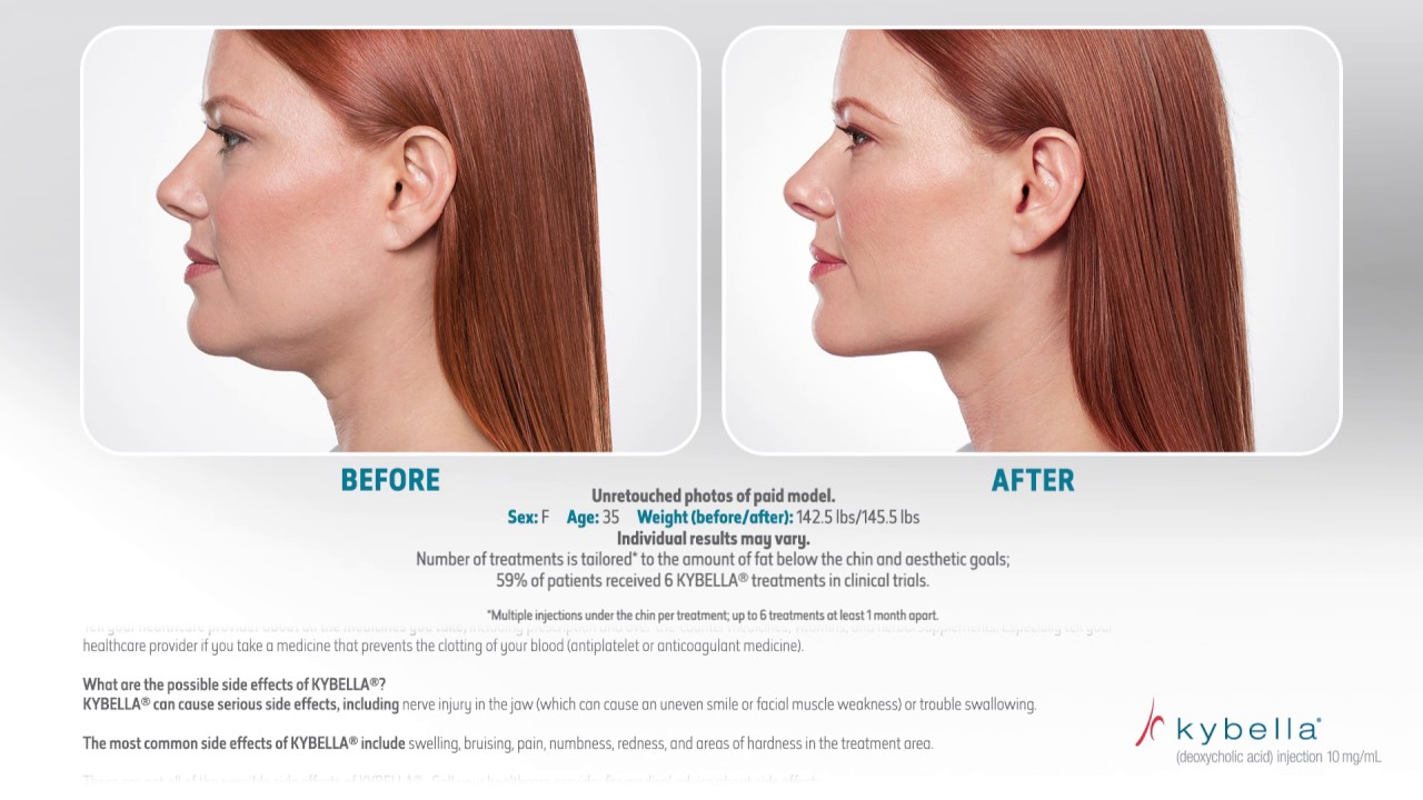 Double Chin   Kybella   Coolsculpting - Coolmini   Stanley Harper, MD
