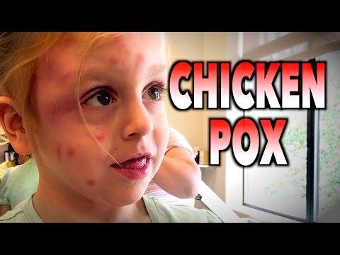 CHICKENPOX? (Unusual Presentation) | Dr. Paul (Varicella)